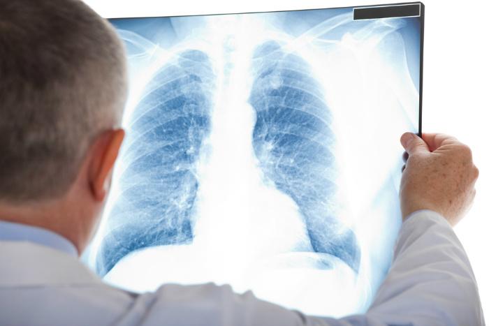 Co je a jak se léčí zápal plic (pneumonie)